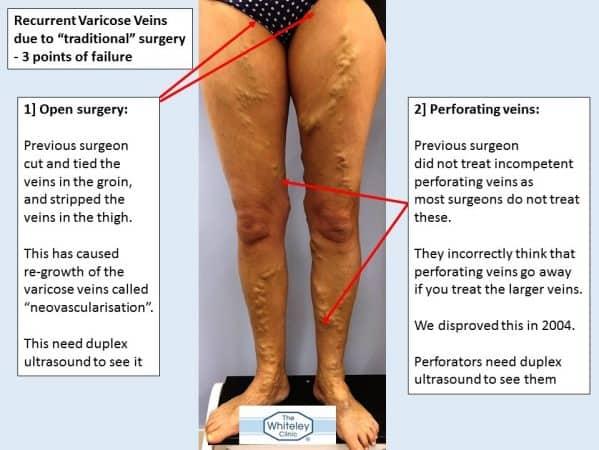 aktives heilmittel für venen an den beinen chemnitz.jpg