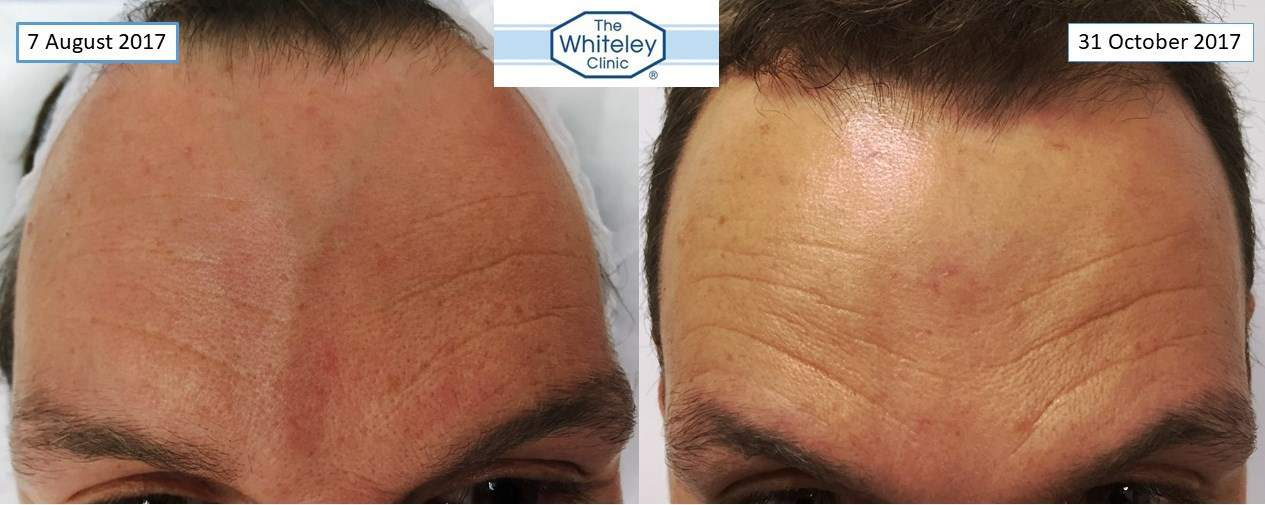 forehead veins successful removal at the whiteley clinic