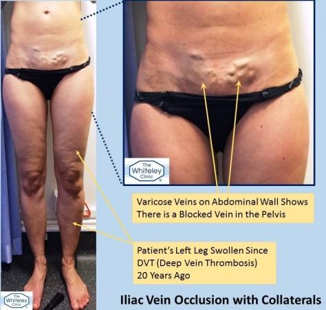 Swollen leg from pelvic vein blockage