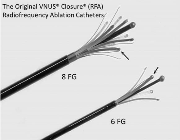 Original Radiofrequency Ablation VNUS Closure catheters 6FG and 8 FG - as used by Mark Whiteley and Judy Holdstock for the first endovenous operation in the UK on 12th March 1999
