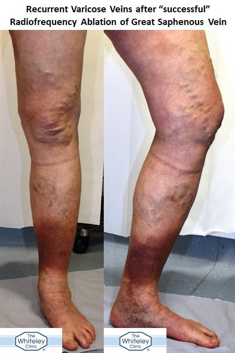 "Recurrent Varicose Veins after ""Successful"" Radiofrequency Ablation of Great Saphenous Vein elsewhere"