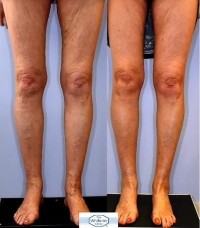Recurrent varicose veins both after stripping 10 years ago - treated successfully by The Whiteley Protocol - Front