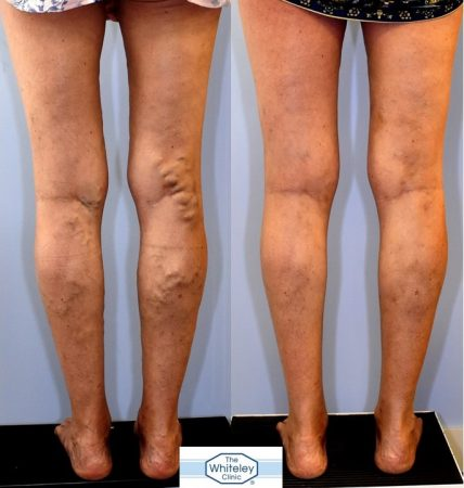 Recurrent varicose veins both after stripping 10 years ago - treated successfully by The Whiteley Protocol - back