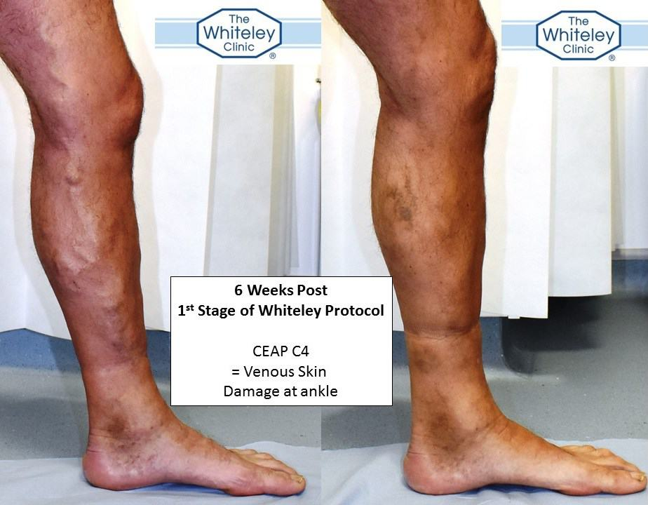 how to fix vein damage