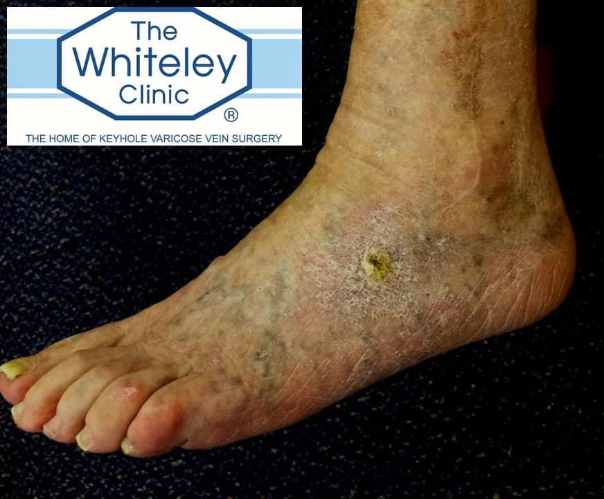 Venous Foot Ulcer Cured By The Whiteley Protocol 174