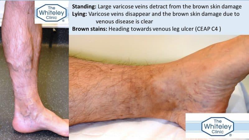 Venous skin damage hidden by big varicose veins