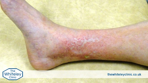 Phlebitis Natural Treatment