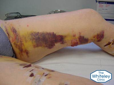 varicose vein stripping surgery