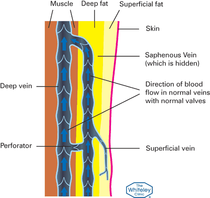 How veins work - Blood flow Diagram