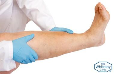 Lymphoedema of the leg