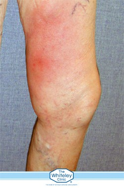 phlebitis at The Whiteley Clinic