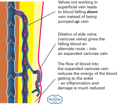 Varicose veins and broken valves diagram