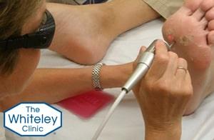 verruca treatment laser